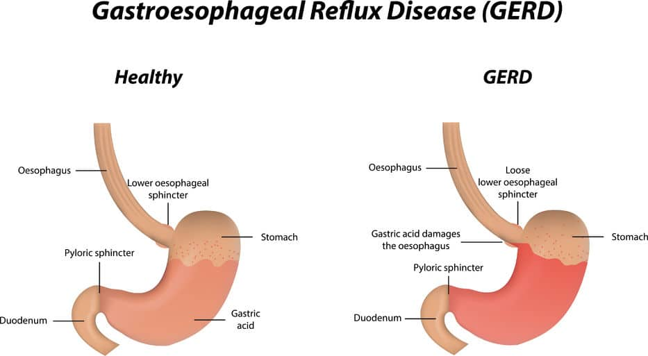 Natural Cure Gerd Symptoms