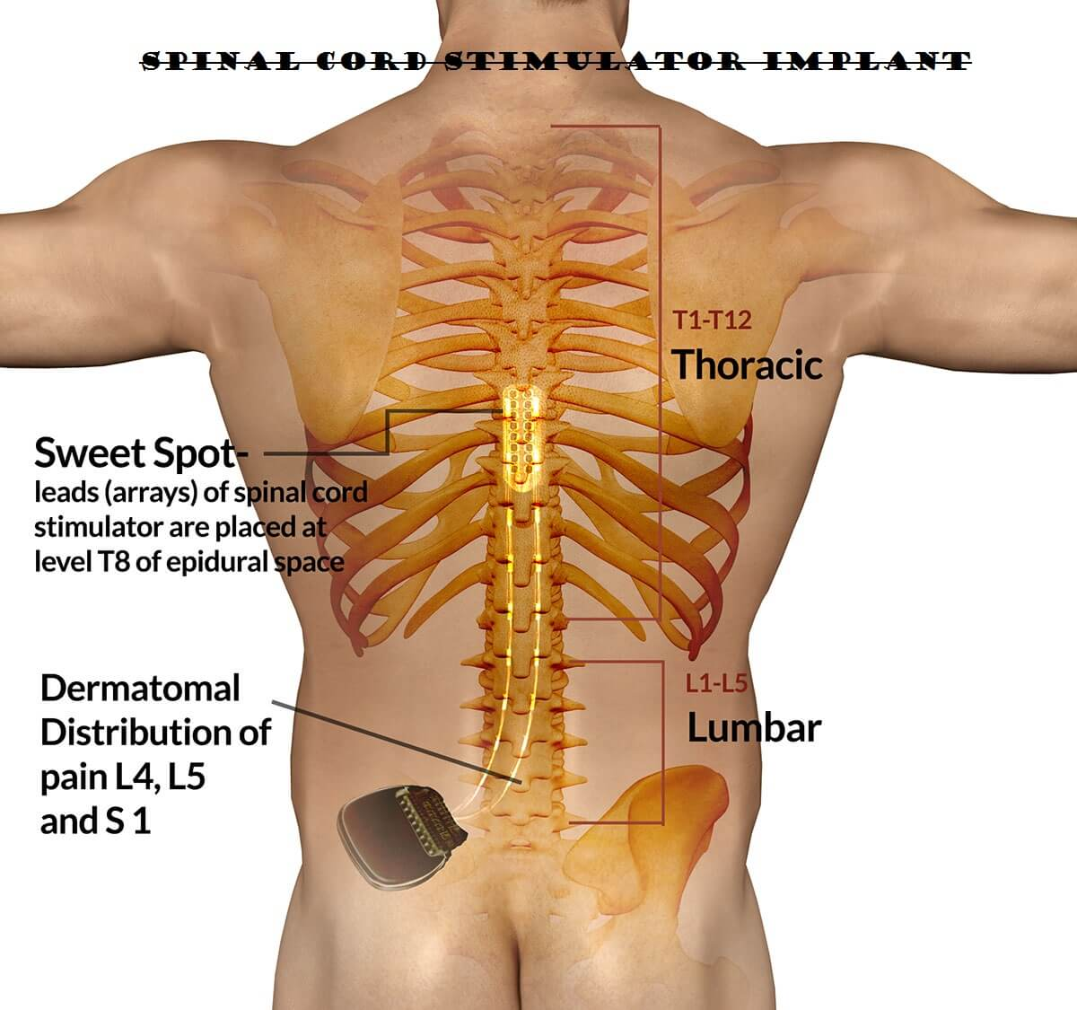 Spinal Cord Stimulator Implant - Health Supplements