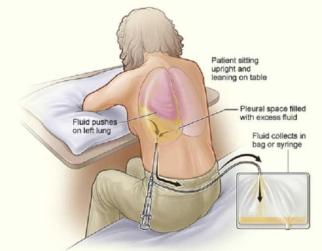 right flank pain