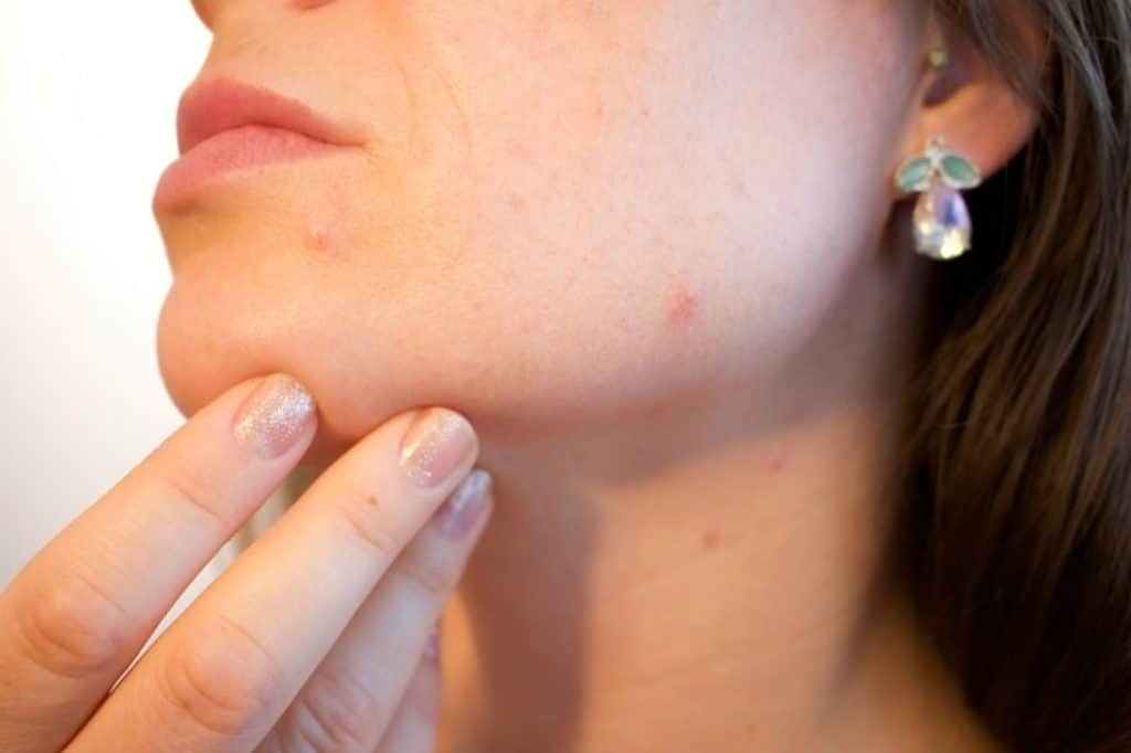 How to Treat Acne with Retinoid Adapalene