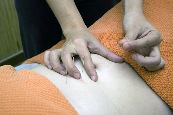Permanent Acupuncture Treatment
