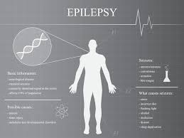 Epilepsy and Seizure Treatments
