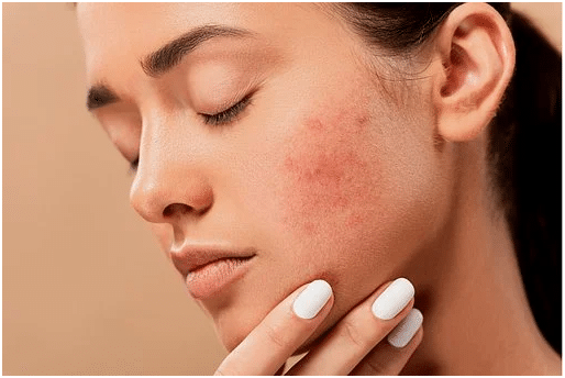 Proven Ways to Fight Acne